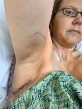 Axilla suture